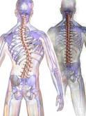 Scoliosis vers alignement 1